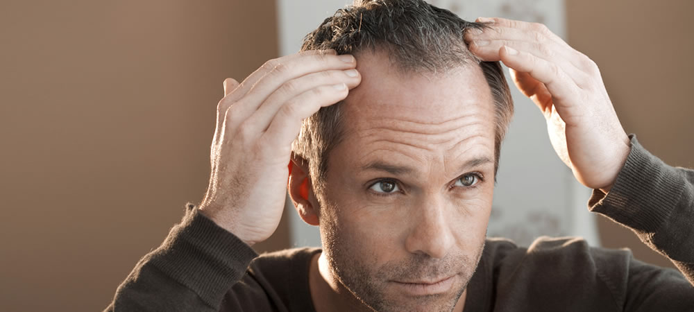 how-to-tackle-mens-thinning-hair